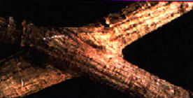 Root Grafts